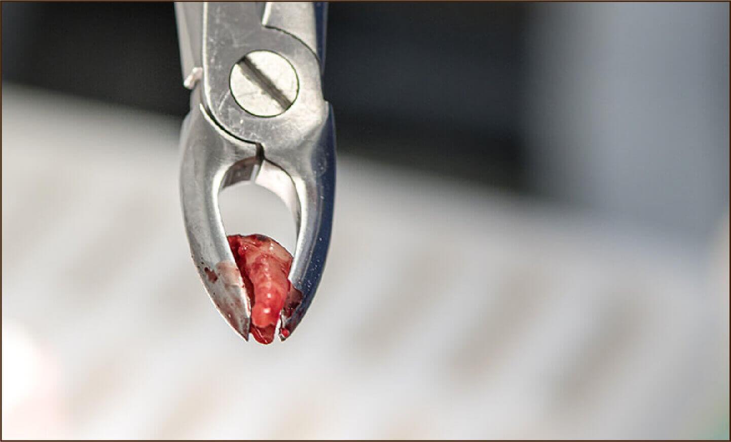 犬の歯を抜いた写真